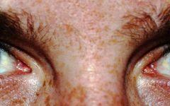 Heterochromia Iridis: A Genetic Disease